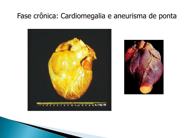 Fase crônica: Cardiomegalia e aneurisma de ponta