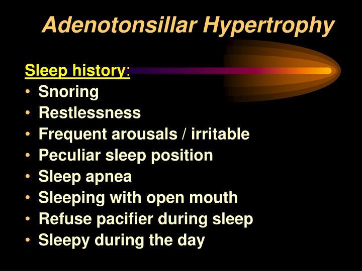 Ppt Adenotonsillar Hypertrophy Ath 0bstructive Sleep