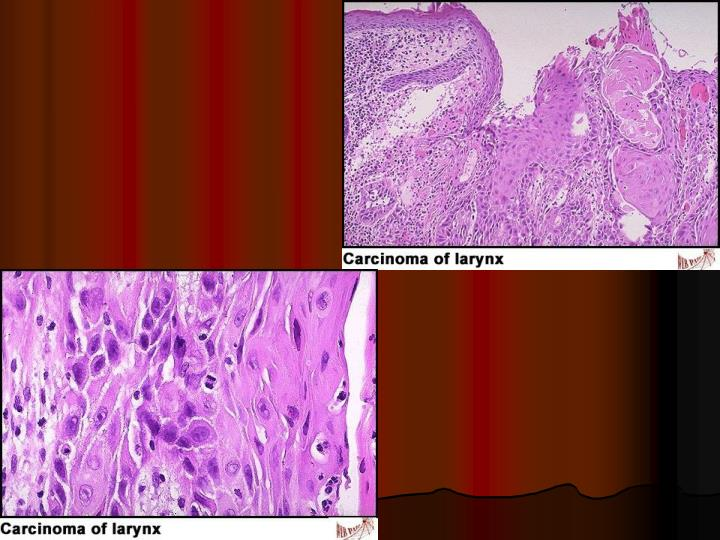 Squamous cell carcinoma of the Larynx