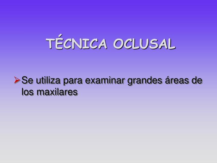 TÉCNICA OCLUSAL