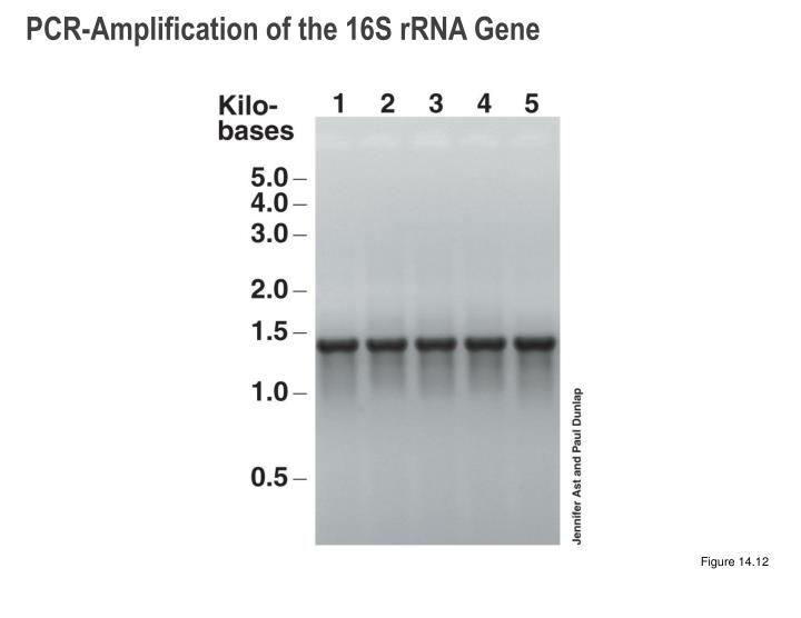 PCR-Amplification of the 16S rRNA Gene