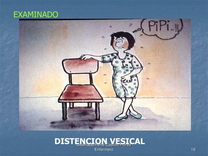 DISTENCION VESICAL