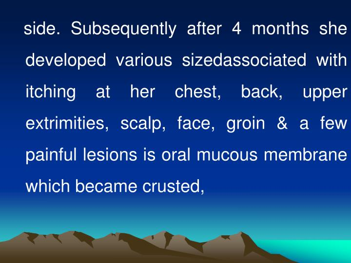 side. Subsequently after 4 months she developed various sizedassociated with itching at her chest, back, upper extrimities, scalp, face, groin & a few painful lesions is oral mucous membrane which became crusted,