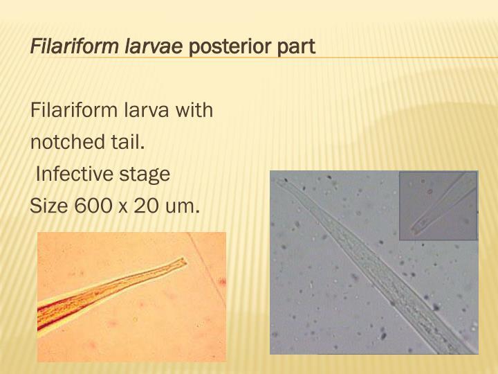 Filariform larvae