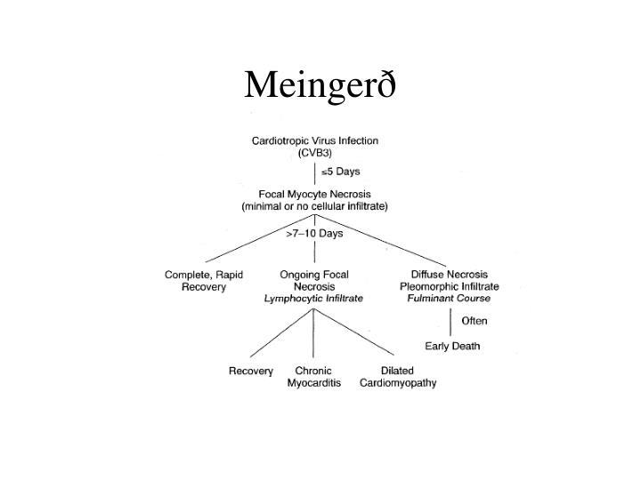 Meingerð