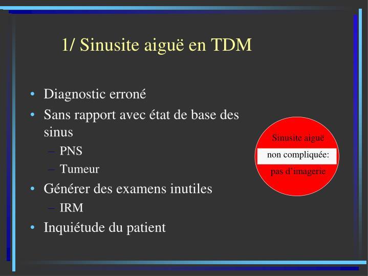 1/ Sinusite aiguë en TDM