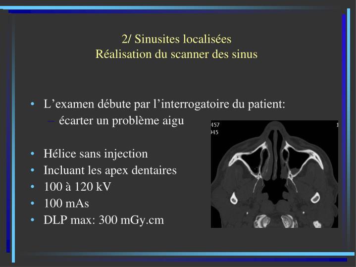 2/ Sinusites localisées