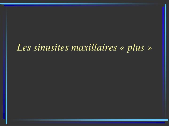 Les sinusites maxillaires «plus»
