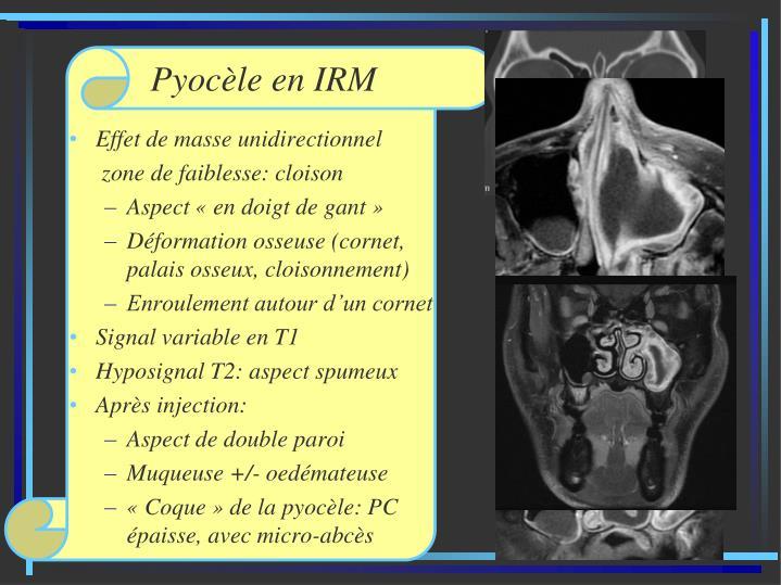Pyocèle en IRM