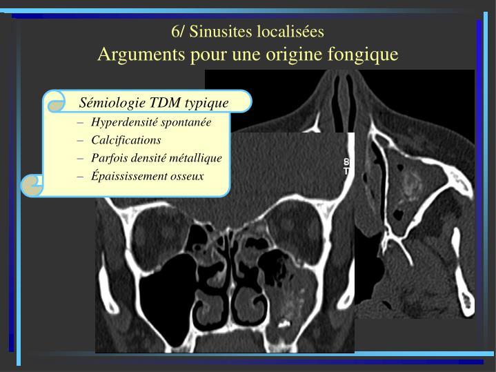 6/ Sinusites localisées