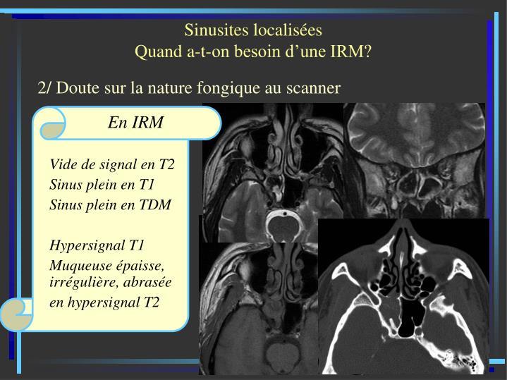 Sinusites localisées