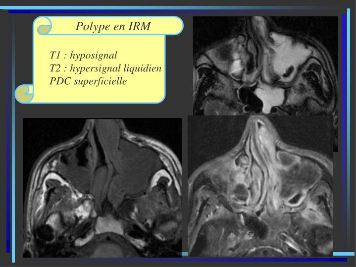 Polype en IRM