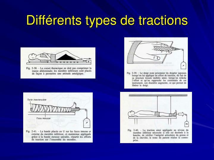 Différents types de tractions