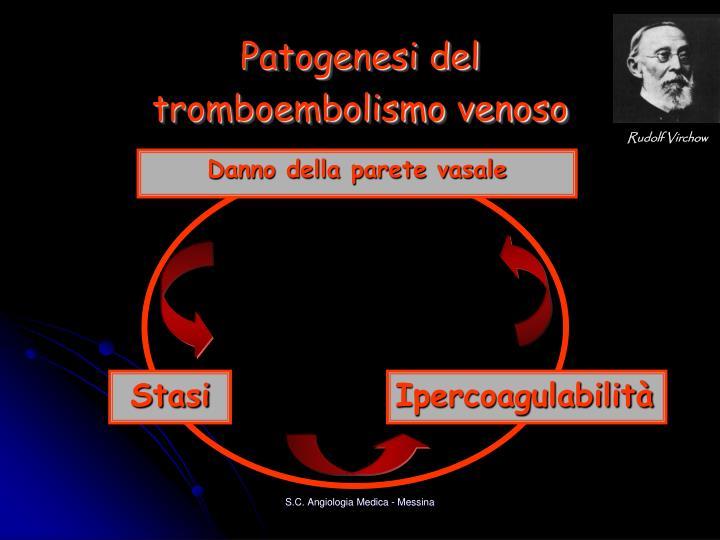 Patogenesi del tromboembolismo venoso