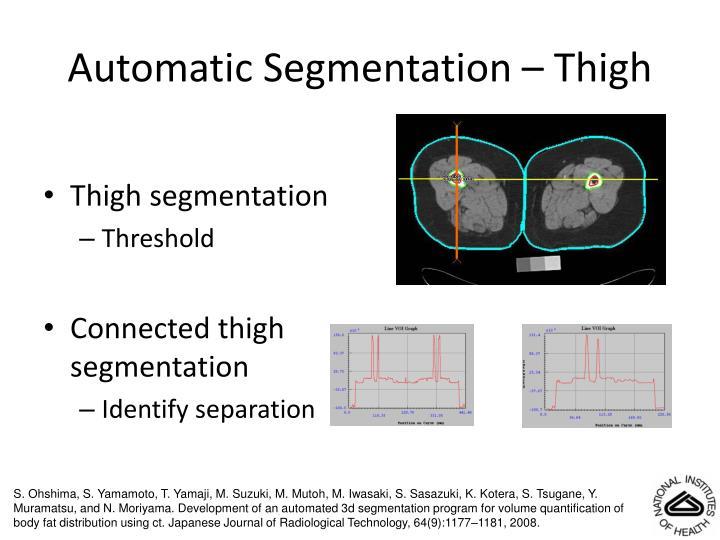 Automatic Segmentation – Thigh