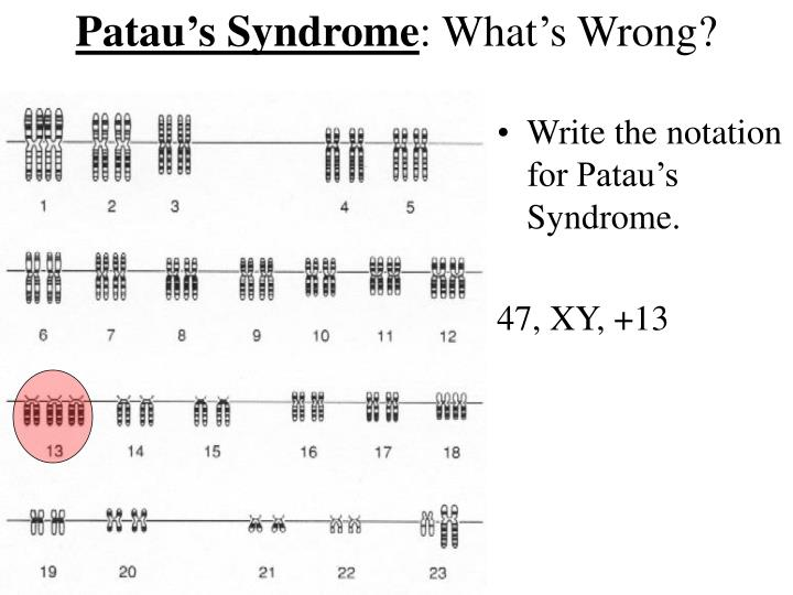Patau's Syndrome