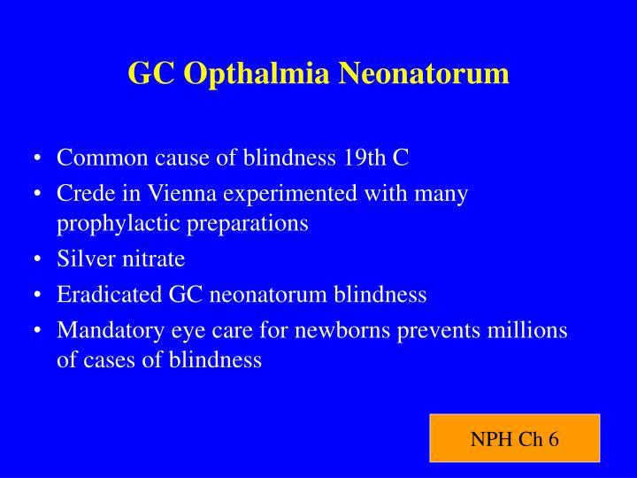 GC Opthalmia Neonatorum