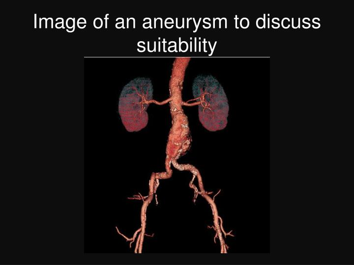 Image of an aneurysm to discuss suitability