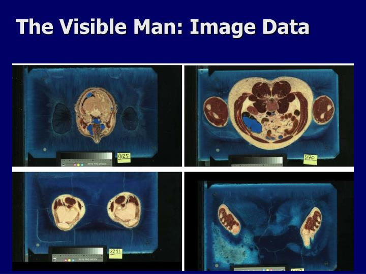 The Visible Man: Image Data