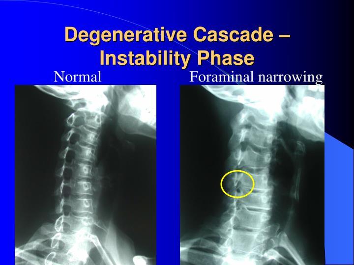 Degenerative Cascade – Instability Phase