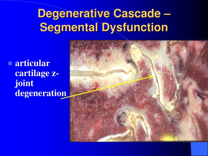 Degenerative Cascade – Segmental Dysfunction