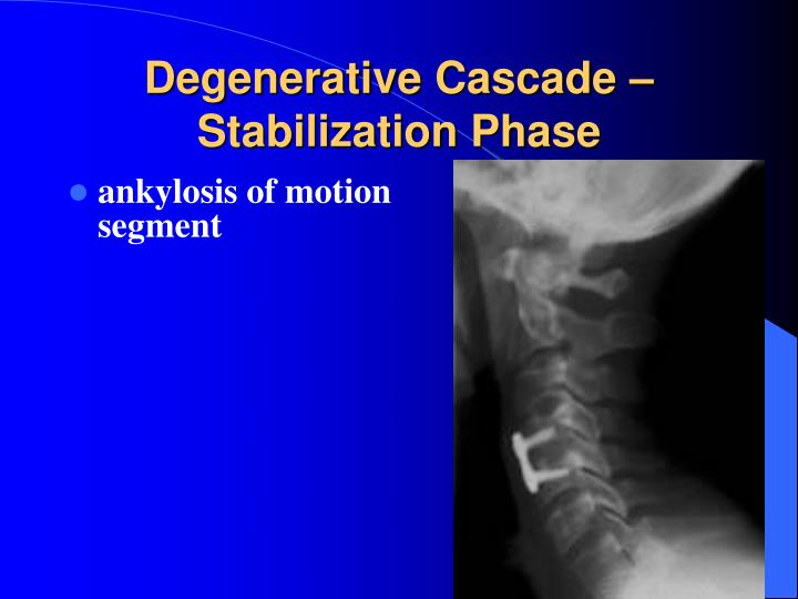 Degenerative Cascade – Stabilization Phase