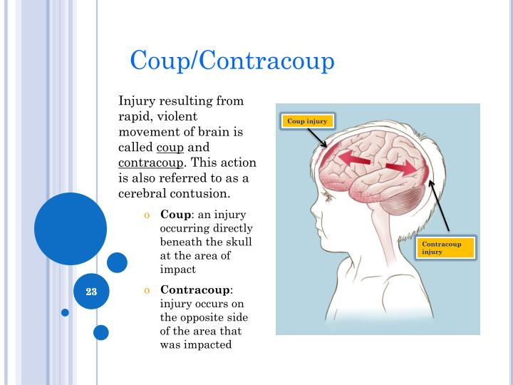 Coup/Contracoup