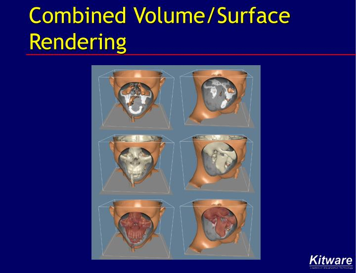 Combined Volume/Surface