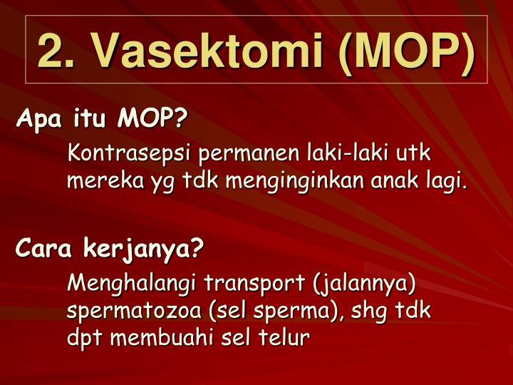 2. Vasektomi (MOP)