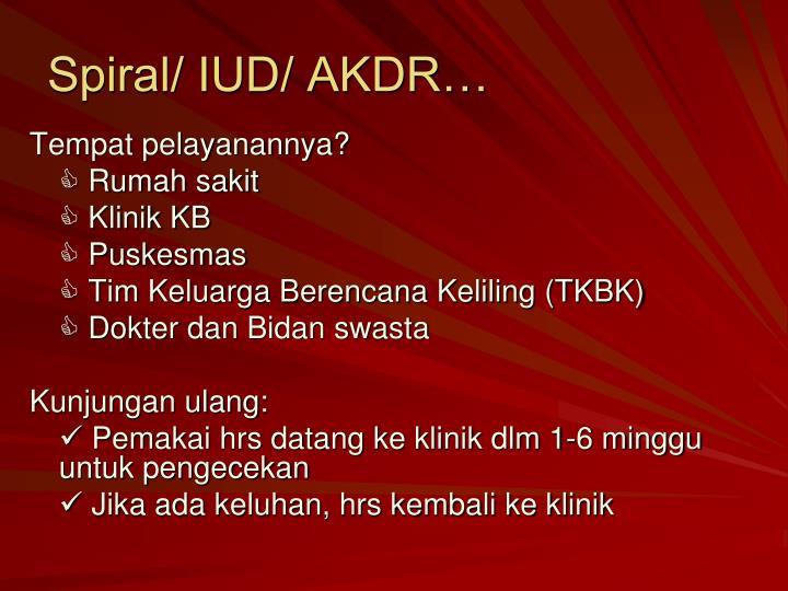 Spiral/ IUD/ AKDR…