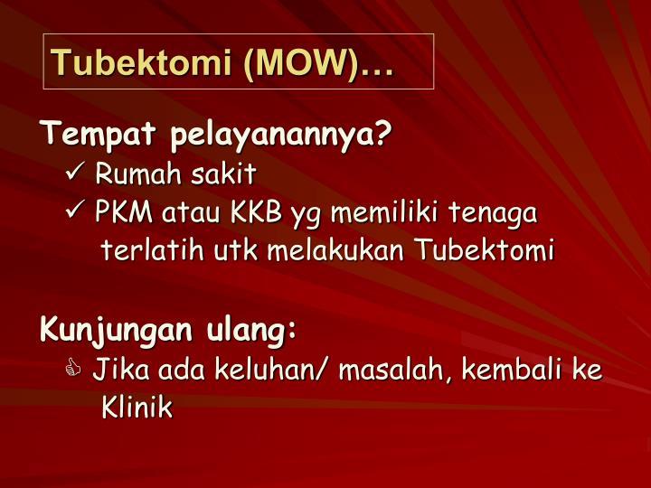 Tubektomi (MOW)…