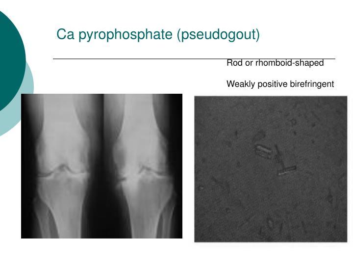 Ca pyrophosphate (pseudogout)