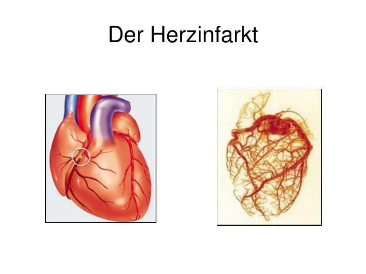 Der Herzinfarkt