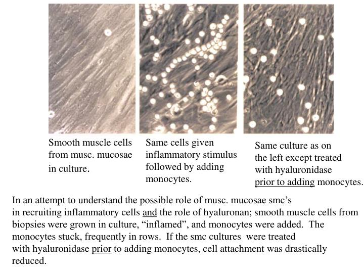 Smooth muscle cells