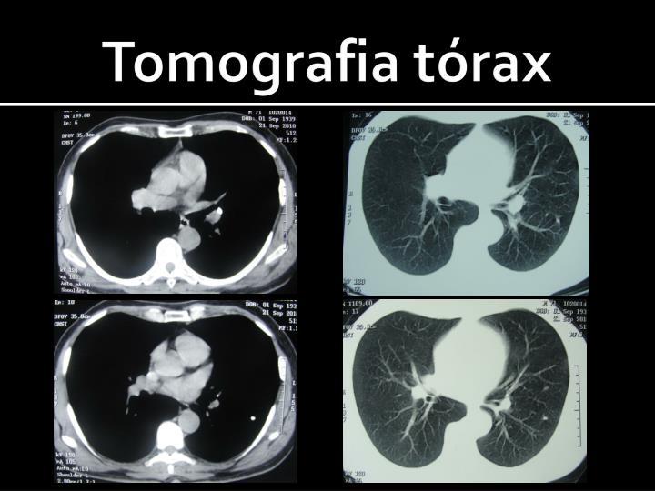 Tomografia tórax