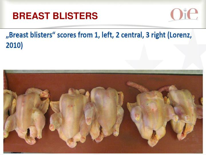 BREAST BLISTERS