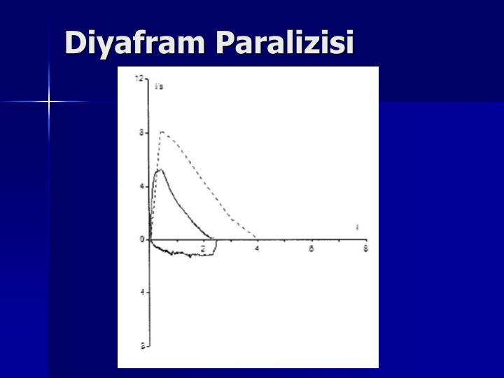 Diyafram Paralizisi