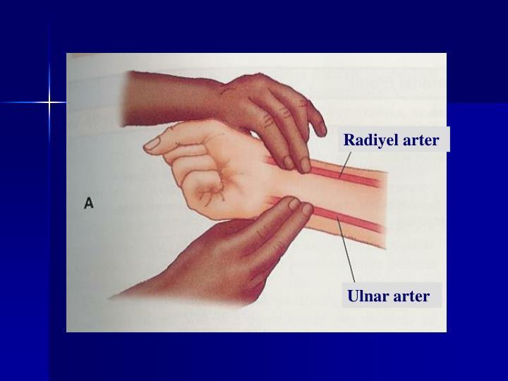 Radiyel arter