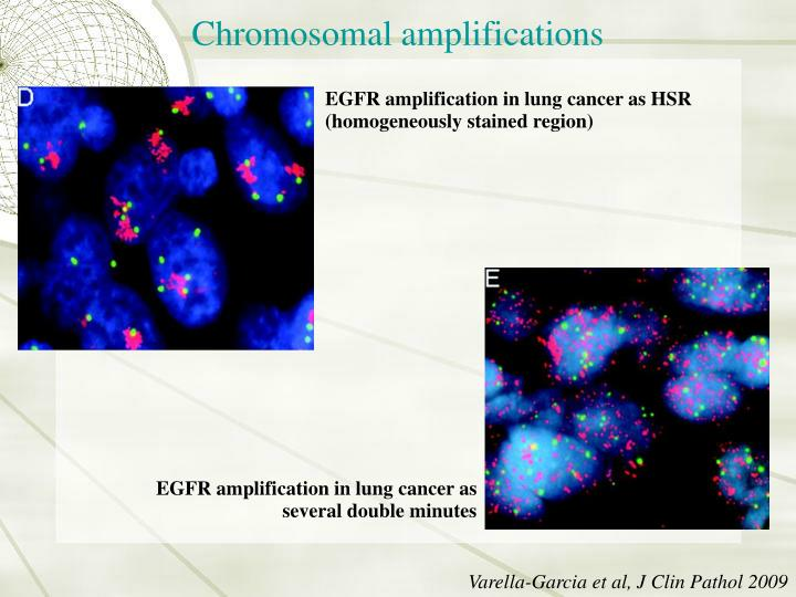 Chromosomal amplifications