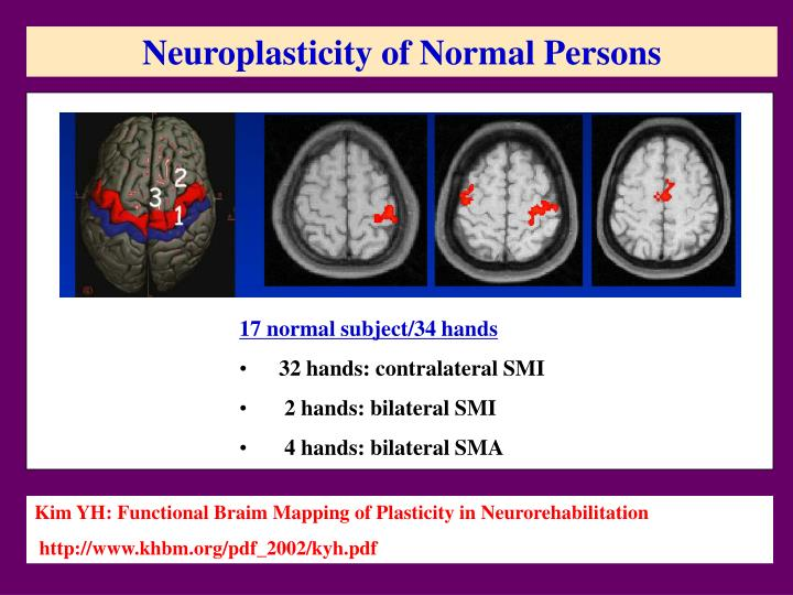 Neuroplasticity of Normal Persons
