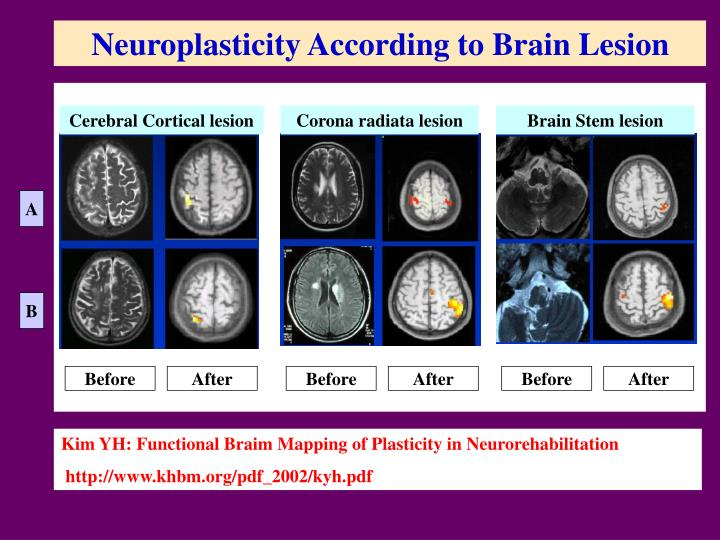 Neuroplasticity According to Brain Lesion