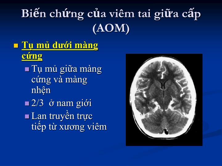 Biến chứng của viêm tai giữa cấp (AOM)