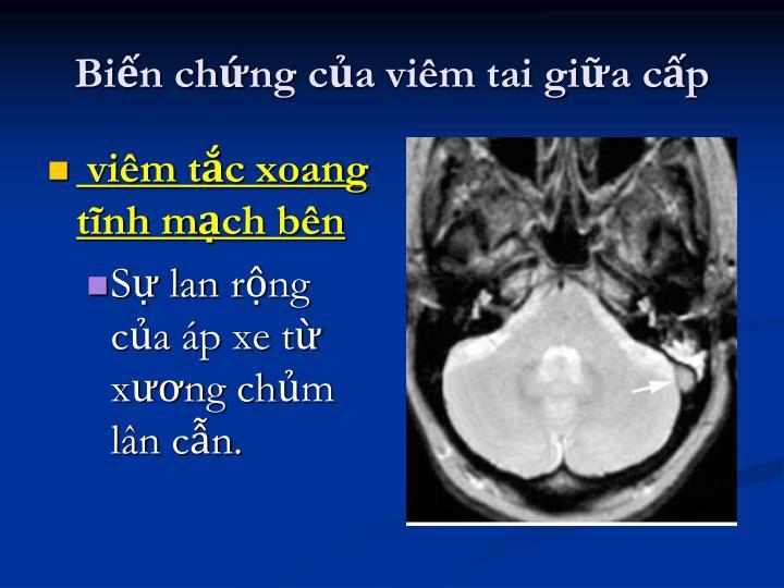 Biến chứng của viêm tai giữa cấp