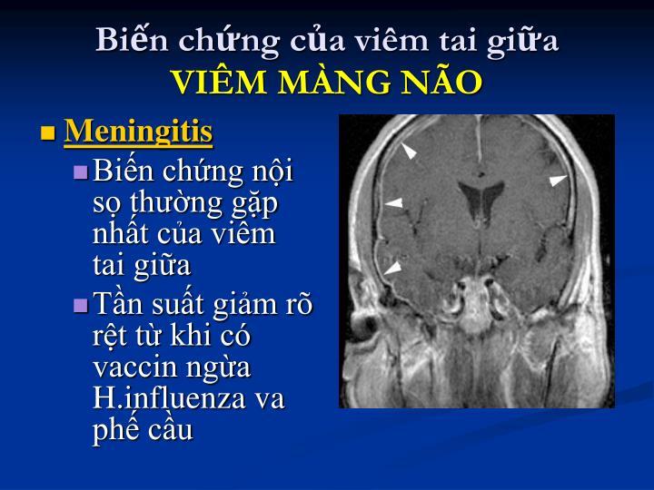 Biến chứng của viêm tai giữa