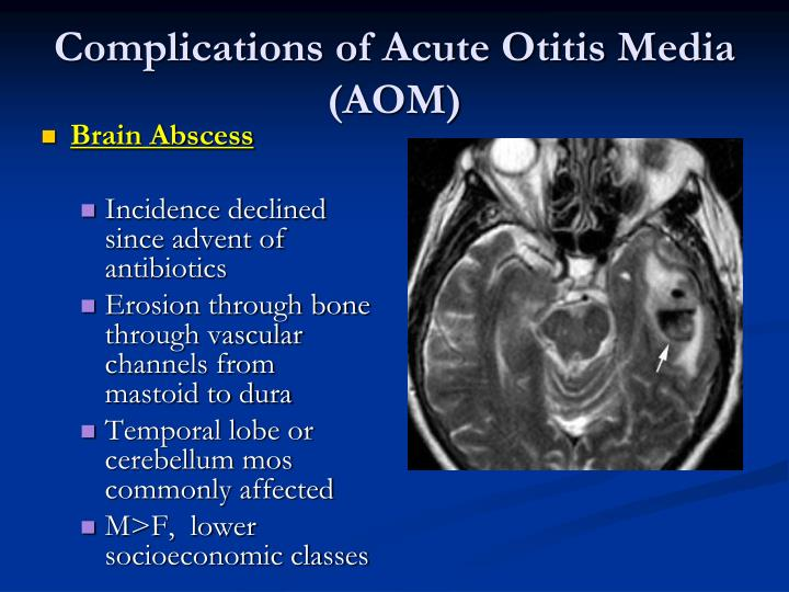 Complications of Acute Otitis Media (AOM)