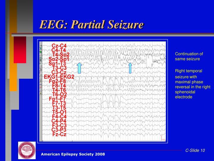EEG: Partial Seizure