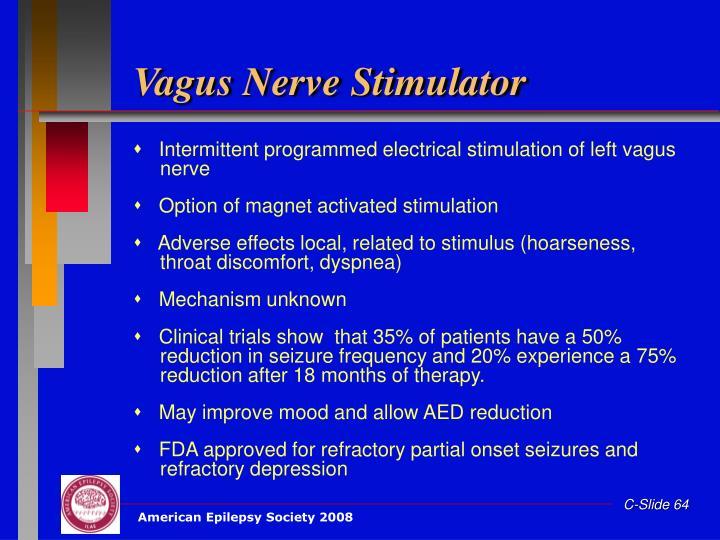 Vagus Nerve Stimulator