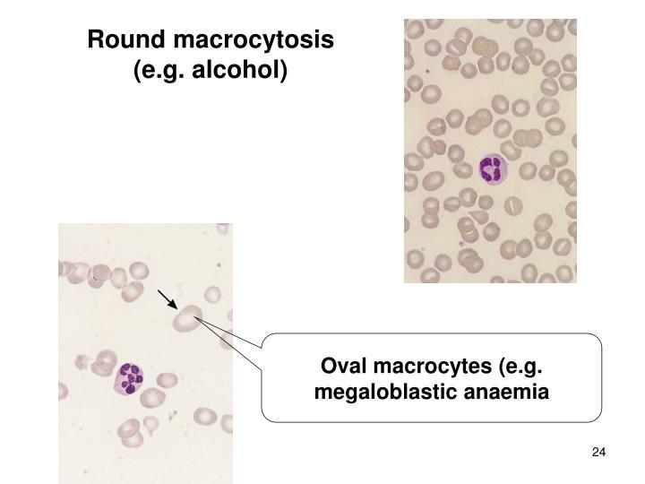 Round macrocytosis