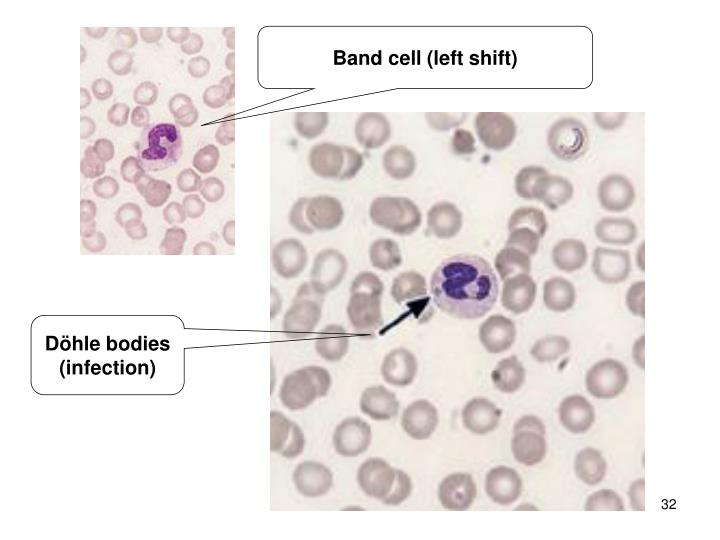 Band cell (left shift)