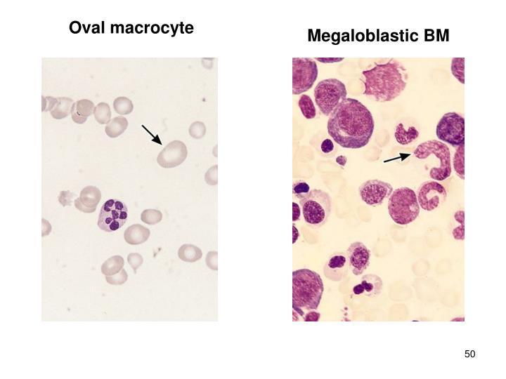 Oval macrocyte